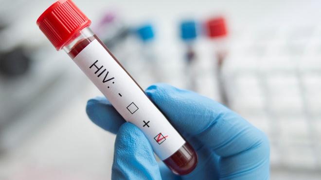 2 tháng xét nghiệm HIV có chính xác không và cần lưu ý những gì?