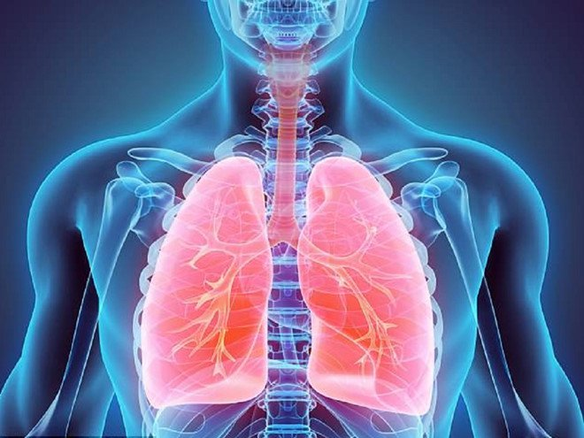 Bệnh viêm phổi mắc phải ở cộng đồng những điều bạn cần biết
