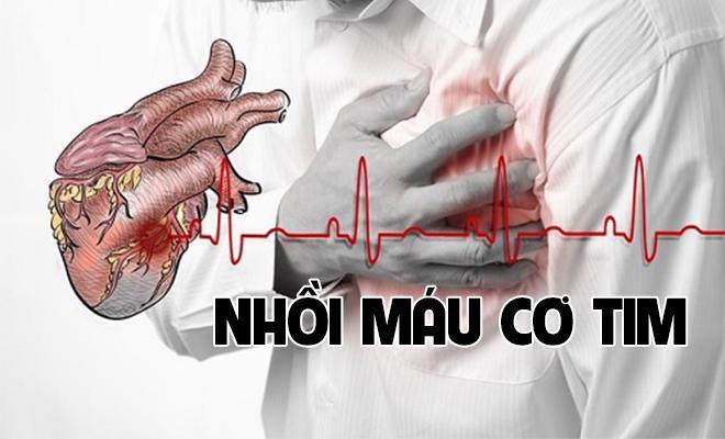 Các nguy cơ có thể gây nhồi máu cơ tim
