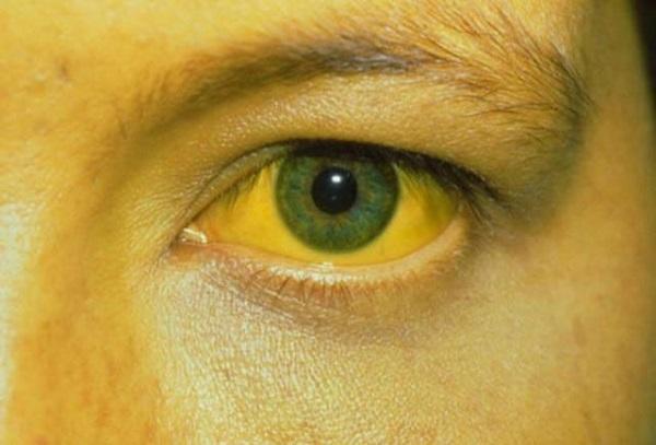 Mắt bị vàng cảnh báo bệnh gì?