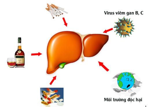 Viêm gan, gan bị nhiễm độc do thuốc những điều bạn cần lưu ý