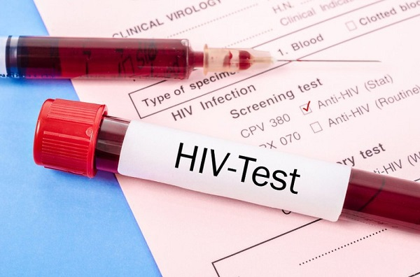 Xét nghiệm HIV âm tính có ý nghĩa gì?