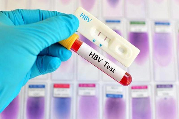 Ý nghĩa của việc xét nghiệm viêm gan B